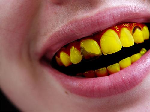 dentsjaunes