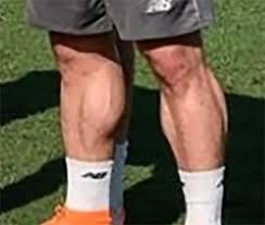soccer player calves