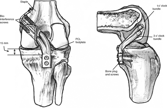 Posterior Cruciate Ligament Reconstruction: All-Inside