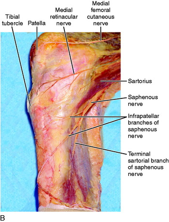 Medial and Anterior Knee Anatomy | Musculoskeletal Key