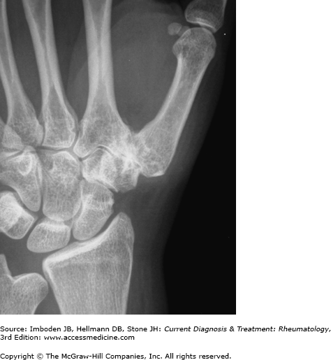 Approach To The Patient With Hand, Wrist, Or Elbow Pain