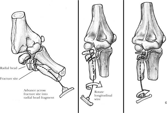 Pediatric Elbow Fractures | Musculoskeletal Key