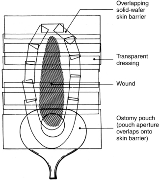 Management of draining wounds and fistulas