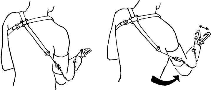 Rehabilitation for Persons with Upper-Extremity Amputation