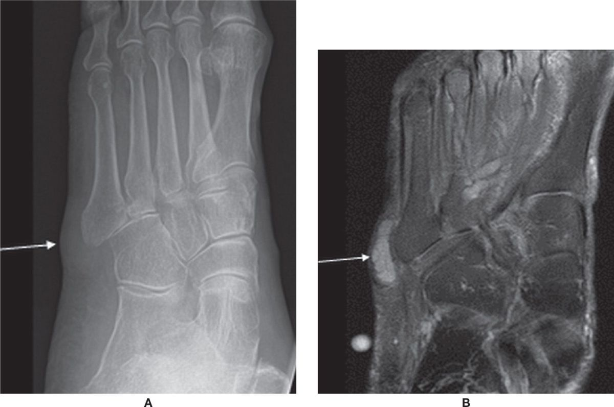 edema perimaleolar bilateral