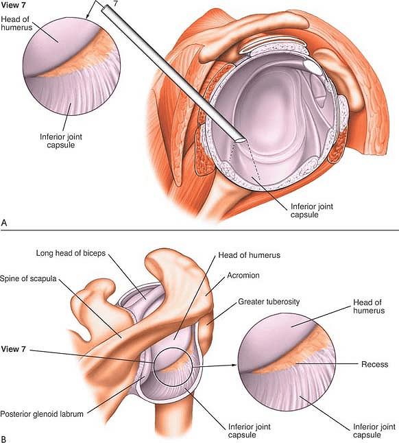 The Shoulder Musculoskeletal Key