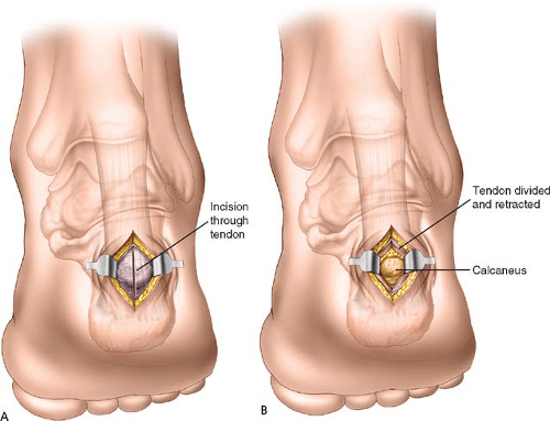 Posteromedial, Posterolateral, and Posterior Midline Approaches for Excision of Calcaneal Exostosis (Haglund's Deformity) | Musculoskeletal Key