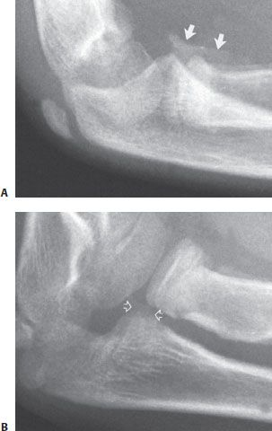 Radial Neck and Olecranon Fractures | Musculoskeletal Key