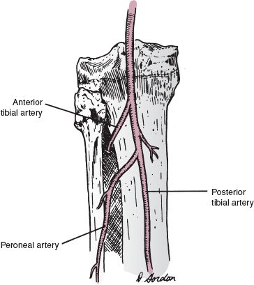 Fractures of the Shaft of the Tibia and Fibula