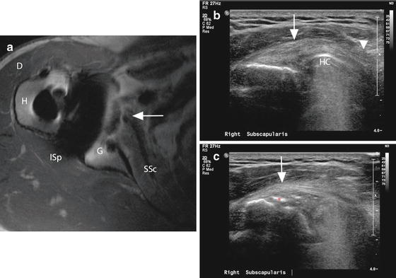Imaging Of The Rotator Cuff Musculoskeletal Key