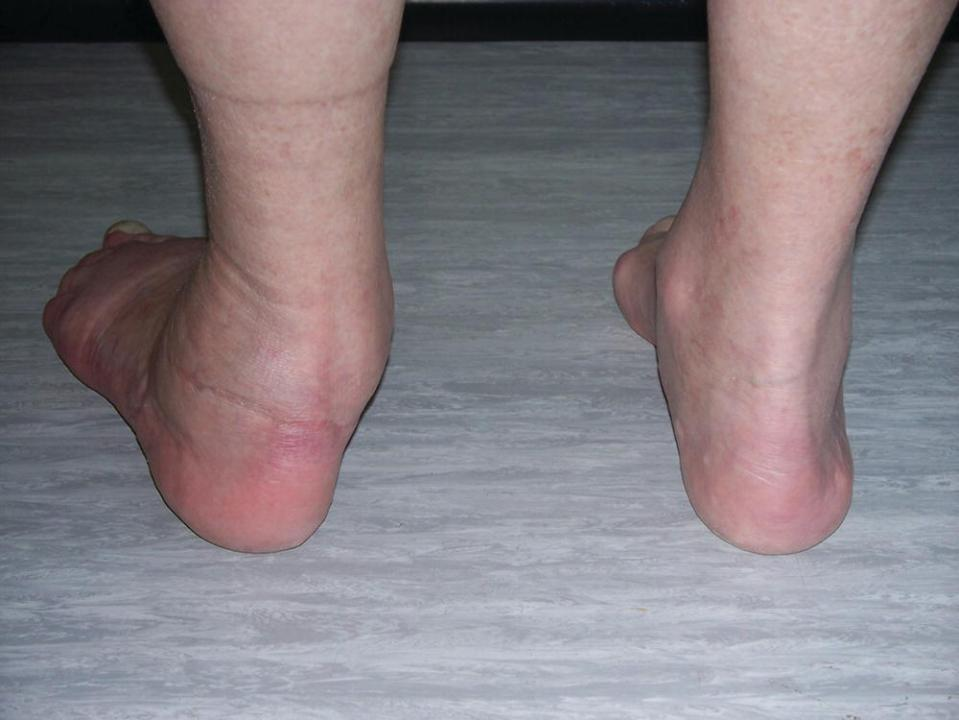 Posterior view of the patient's feet, with abnormally pronated left foot demonstrating a significantly everted heel position.