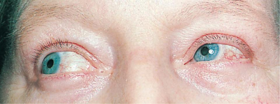 Close-up of a person's eyes with episcleritis.