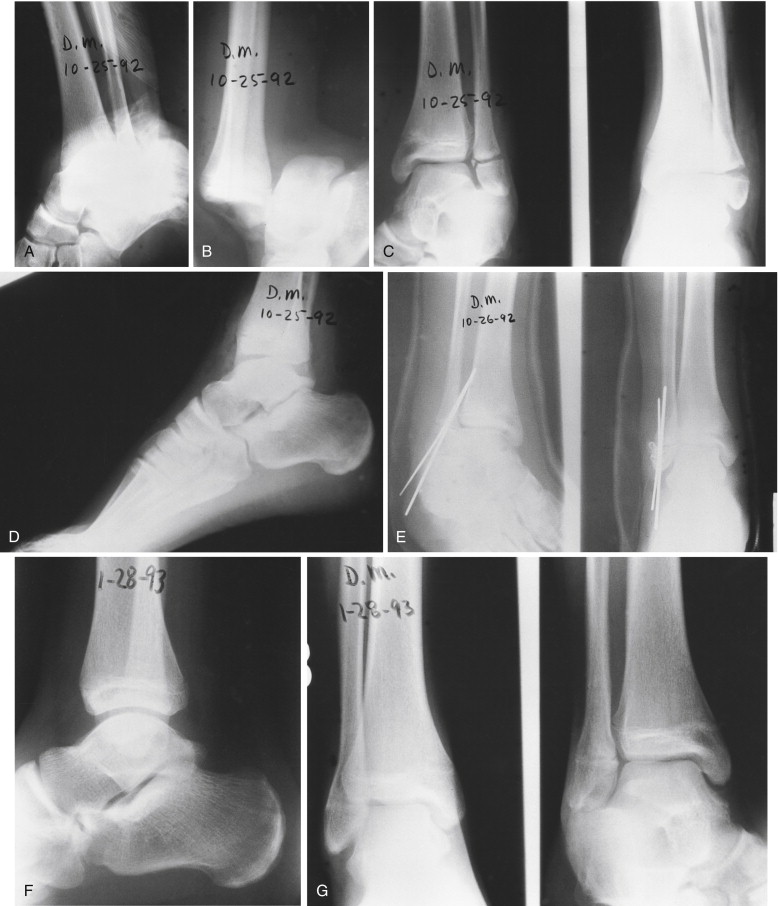 Fractures And Dislocations Of The Foot And Ankle
