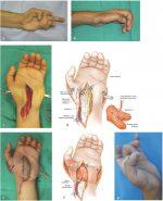 Functioning Free Muscle Transfer (Gracilis, Latissimus)