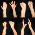 Hand and Proximal Replantation