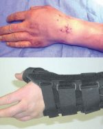 22 Percutaneous Fixation of Scaphoid Fibrous/Nonunion With and Without Percutaneous Bone Graft