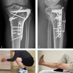 Tibia and fibula, proximal: intraarticular bicondylar fracture, no metadiaphyseal involvement—41-C3