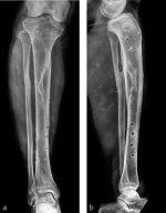 Tibia and fibula, shaft: wedge fracture, spiral wedge—42-B1