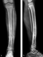 Minimally invasive plate osteosynthesis after osteotomy for deformity correction