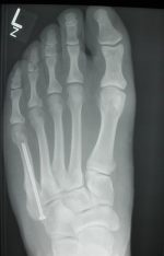 Chapter 23 – Fractures and Dislocations of the Forefoot