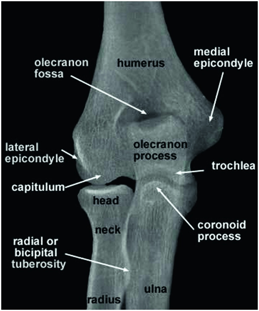 Chapter 2 - Elbow | Musculoskeletal Key