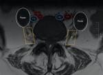 Lumbar Interbody Fusion L3–L4, L4–L5