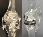 of theUnicompartmental Knee Arthroplasty