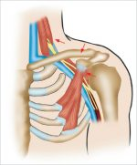 21 Thoracic Outlet Syndrome