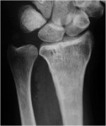 Treatment of the Intraarticular Malunited Distal Radius