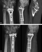 Biomechanics of Distal Radius Fractures