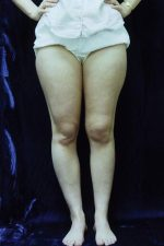 Pathological Torsion of the Lower Limb