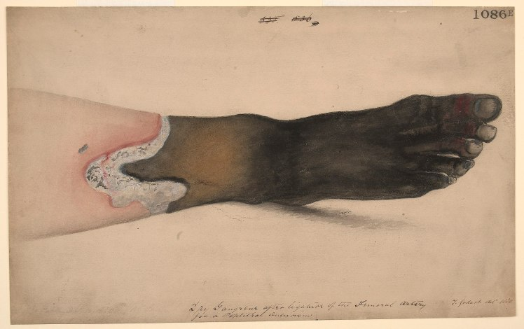 2560px-Dry_gangrene_of_the_foot_and_ankle_Wellcome_L0061216