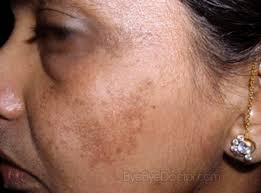 Skin Discoloration During Pregnancy: Melasma