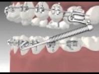 braces forsus springs orthodontic appliances kids