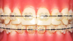 tips for teens in braces