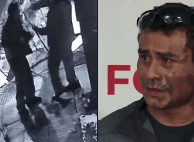 This Man Had Battery Acid Thrown At Him During a Racist Hate Crime