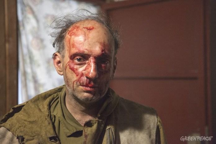 Избитый на Кубани специалист Гринпис России Михаил Крейндлин. Фото: Гринпис России