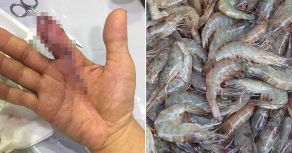 S'pore Man's Finger Allegedly Amputated After Infection By Flesh-Eating Bacteria From Prawn