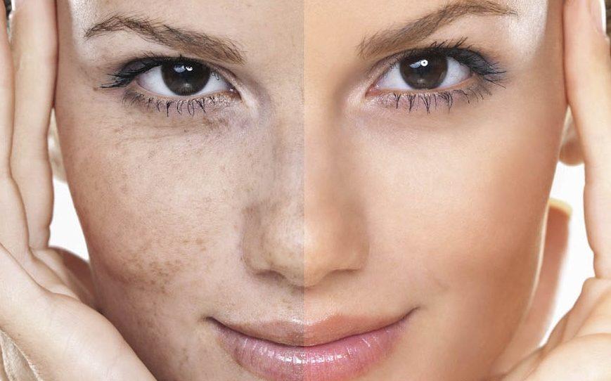 7ماسكات لإزالة تصبغات الوجه في أسبوع/متألقة