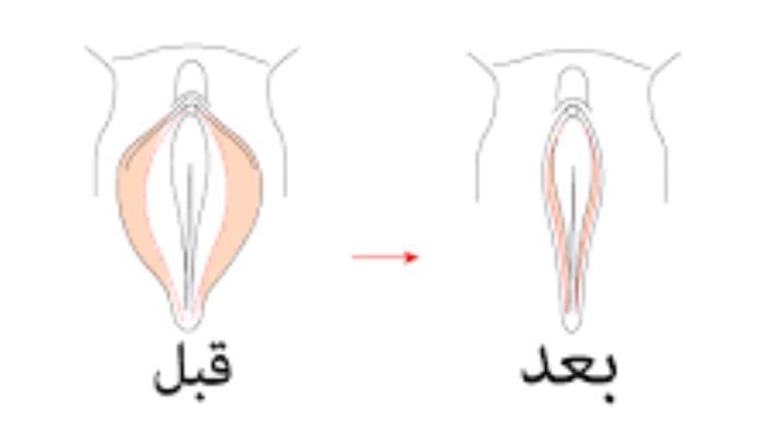 طريقة تضييق المنطقة الحساسة وعلاج ترهل المنطقة الحساسة