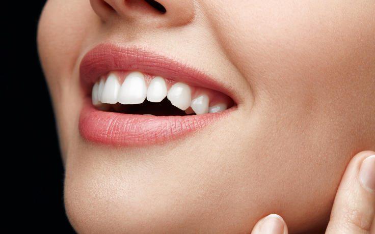 ابر تبييض الاسنان ونصائح للاعتناء بالاسنان بعد تبييضها /متألقة