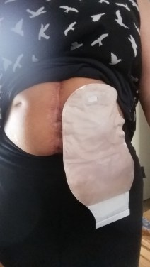 Colostomy and Surgery Scar