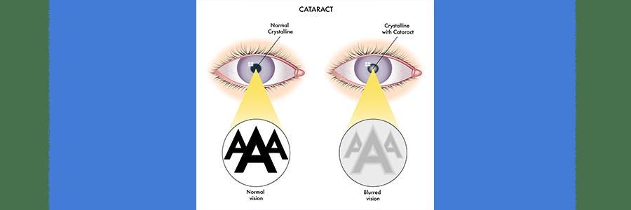 cataracts chart