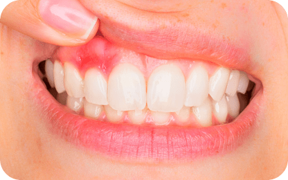 Memory loss begins in the mouth...and it's triggered by a certain gum bacteria