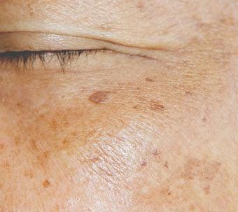 Entfernung von Altersflecken und Pigmentflecken