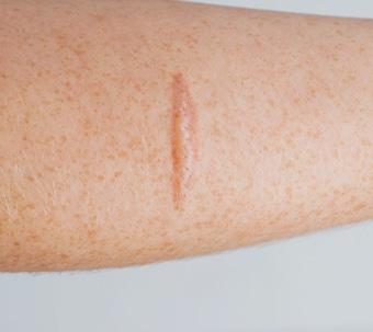 Narbenbehandlung mit Lasern Dr Peter Schulze