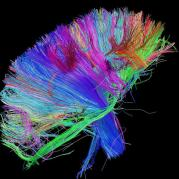 white-matter-fibers-brainstem-and-above
