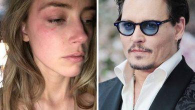 Photo of Divorce shock Depp Amber Heard domestic violence
