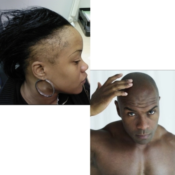 Capil'R/ Chute de cheveux et  solutions !!!