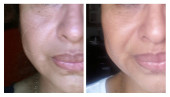 before-after3wks-alba